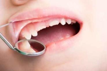 Sussidio alle cure dentarie ortodontiche